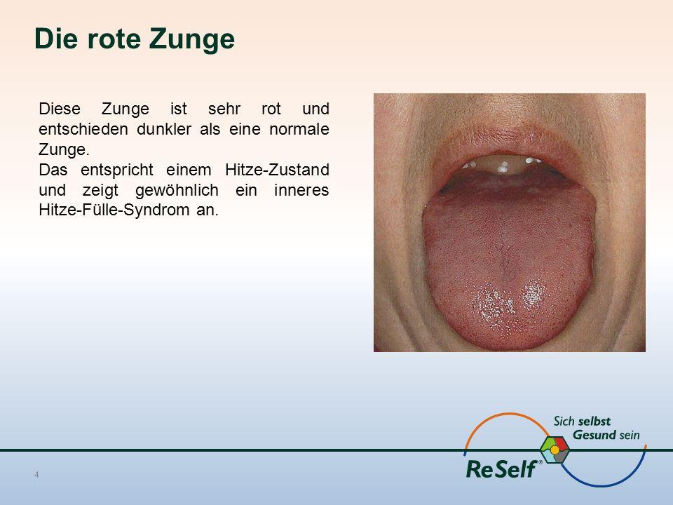 Die rote Zunge Diese Zunge ist sehr rot und entschieden dunkler als eine normale Zunge.