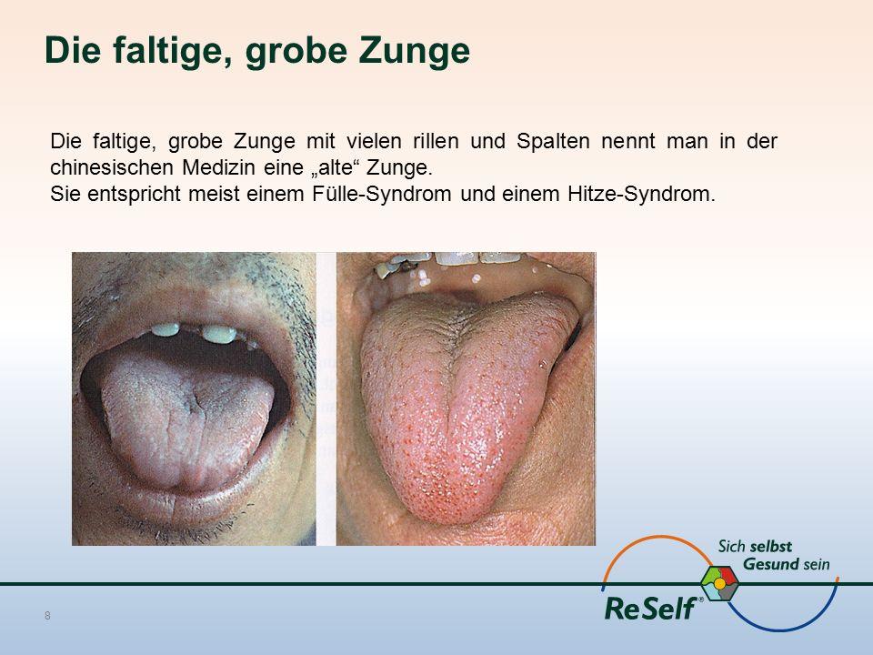 Die faltige, grobe Zunge