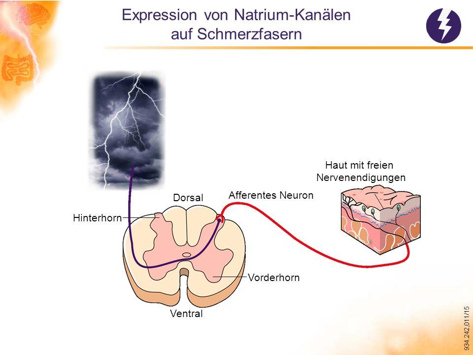 Expression von Natrium-Kanälen auf Schmerzfasern