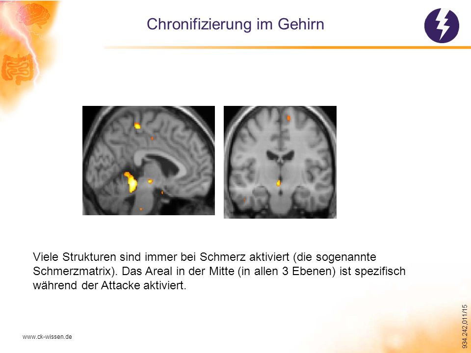 Chronifizierung im Gehirn