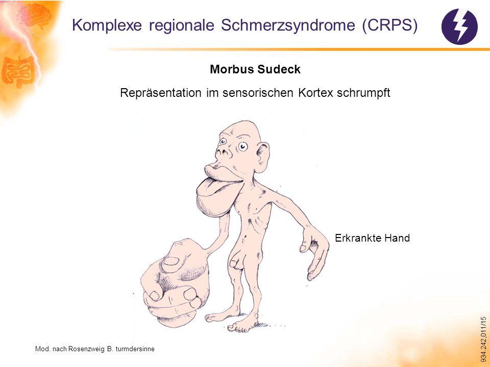 Komplexe regionale Schmerzsyndrome (CRPS)