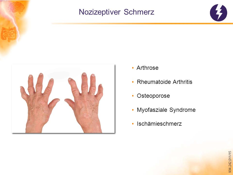 Nozizeptiver Schmerz Arthrose Rheumatoide Arthritis Osteoporose