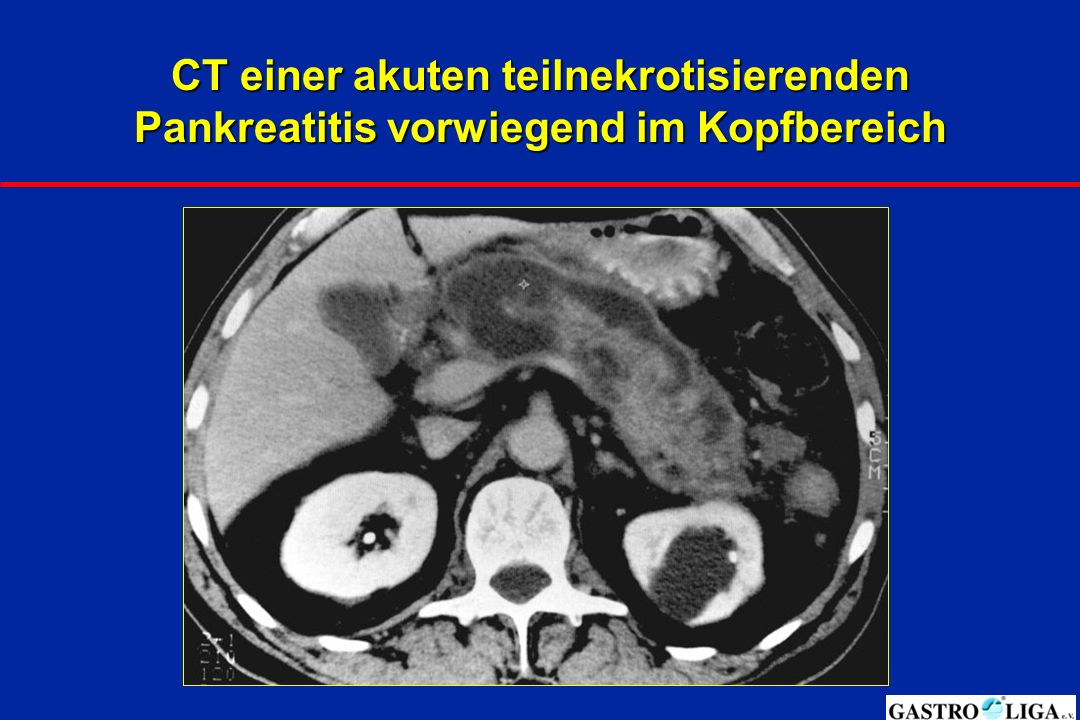CT einer akuten teilnekrotisierenden Pankreatitis vorwiegend im Kopfbereich