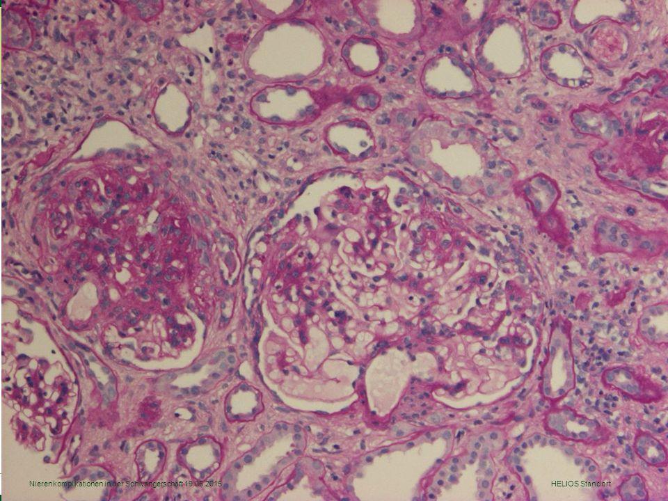 Nierenkomplikationen in der Schwangerschaft 19.06.2015