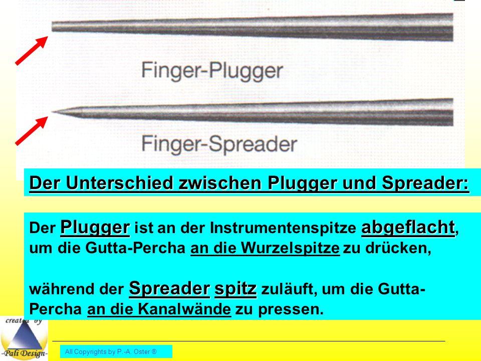 Der Unterschied zwischen Plugger und Spreader: