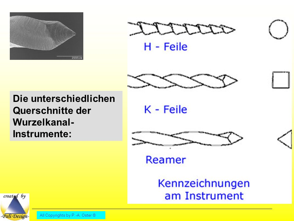 Die unterschiedlichen Querschnitte der Wurzelkanal-Instrumente: