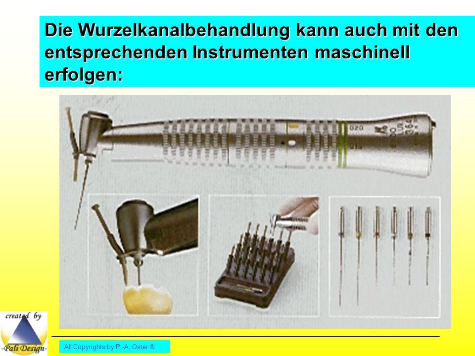 Die Wurzelkanalbehandlung kann auch mit den entsprechenden Instrumenten maschinell erfolgen: