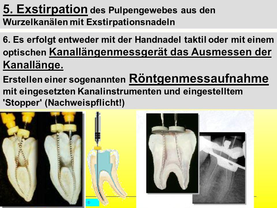 5. Exstirpation des Pulpengewebes aus den Wurzelkanälen mit Exstirpationsnadeln