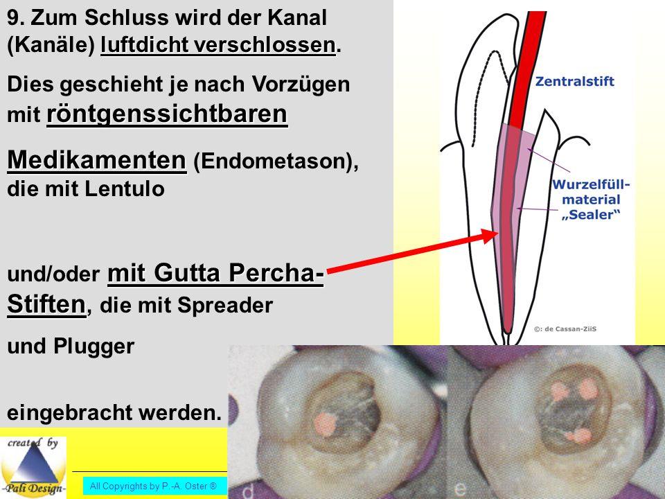 Medikamenten (Endometason), die mit Lentulo