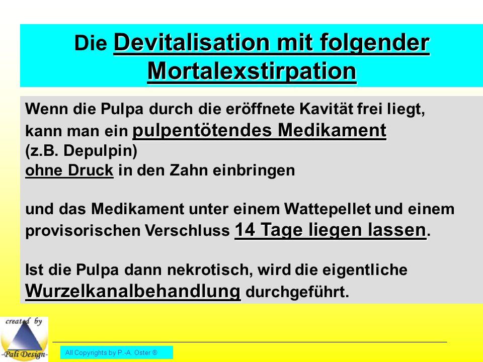 Die Devitalisation mit folgender Mortalexstirpation