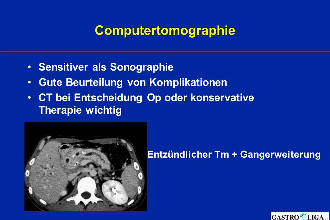 Computertomographie Sensitiver als Sonographie