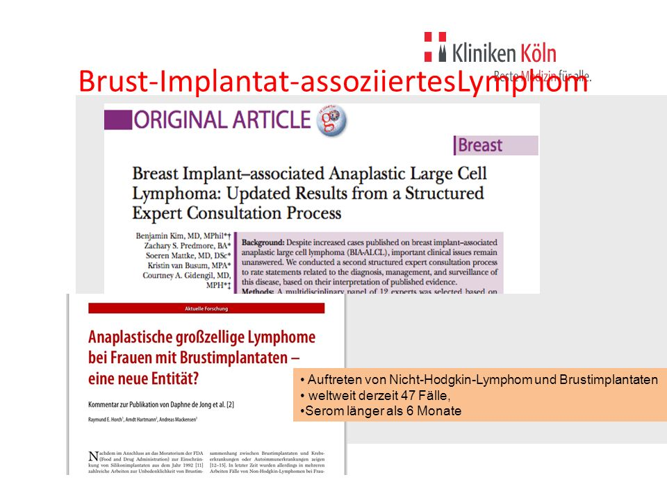 Brust-Implantat-assoziiertesLymphom
