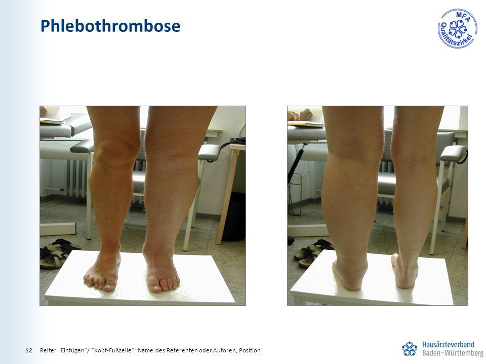 Phlebothrombose Reiter Einfügen / Kopf-Fußzeile : Name des Referenten oder Autoren, Position