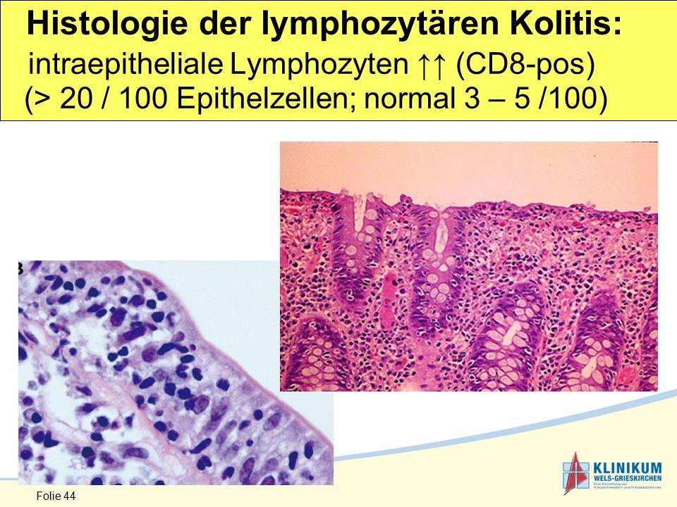 Histologie der lymphozytären Kolitis: intraepitheliale Lymphozyten ↑↑ (CD8-pos) (> 20 / 100 Epithelzellen; normal 3 – 5 /100)