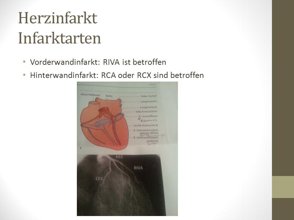 Herzinfarkt Infarktarten