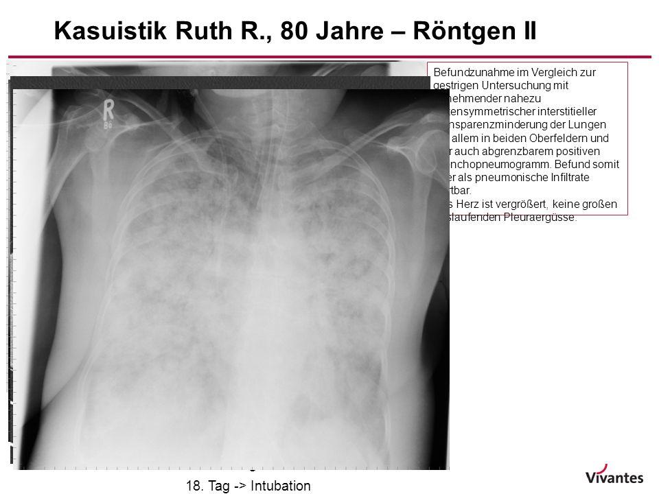 Kasuistik Ruth R., 80 Jahre – Röntgen II