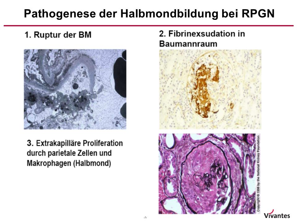 Pathogenese der Halbmondbildung bei RPGN