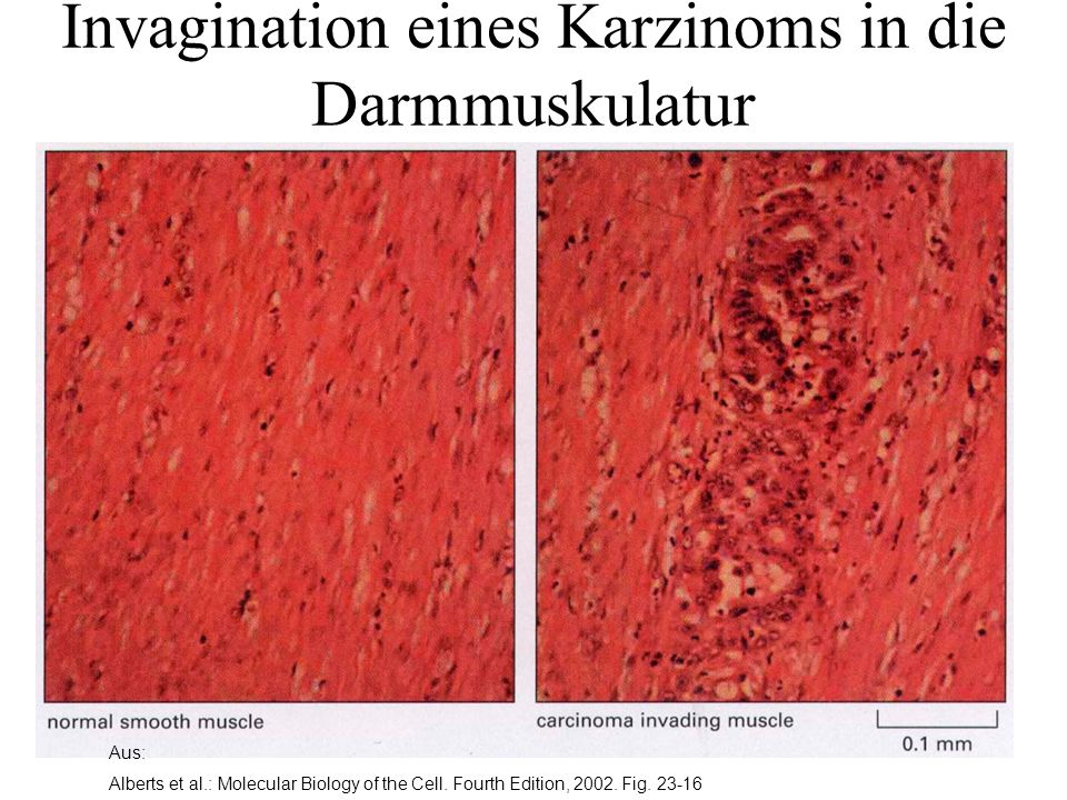 Invagination eines Karzinoms in die Darmmuskulatur