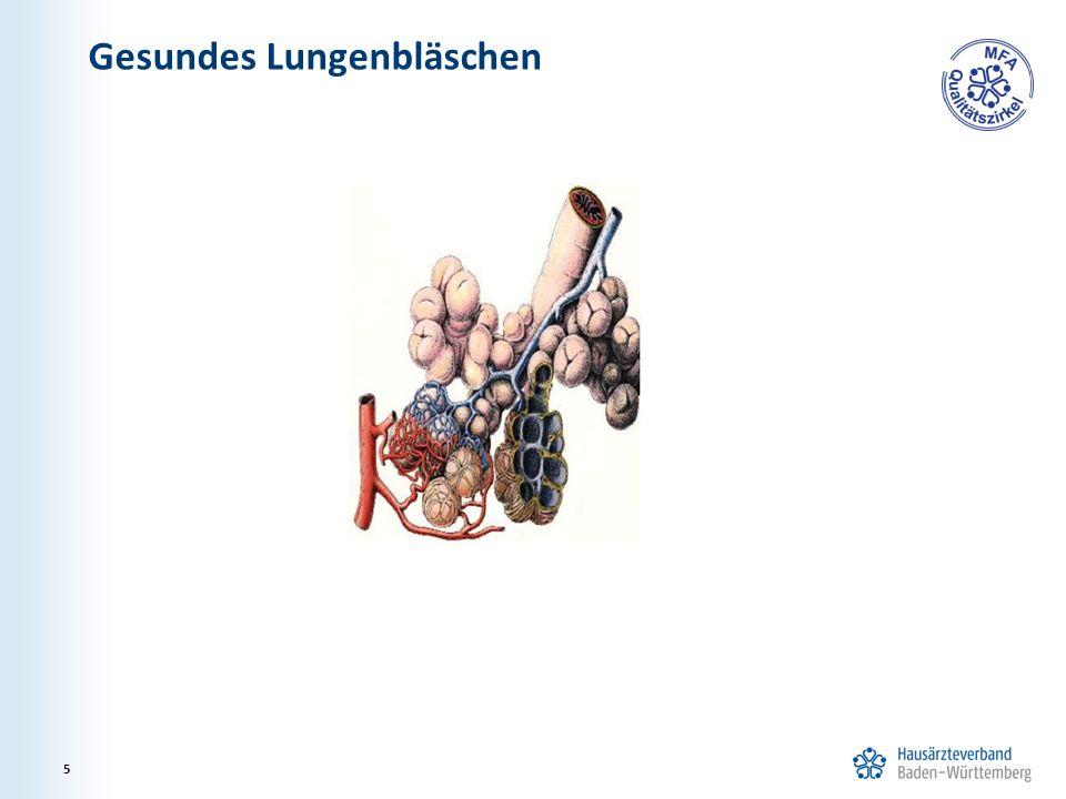 Gesundes Lungenbläschen