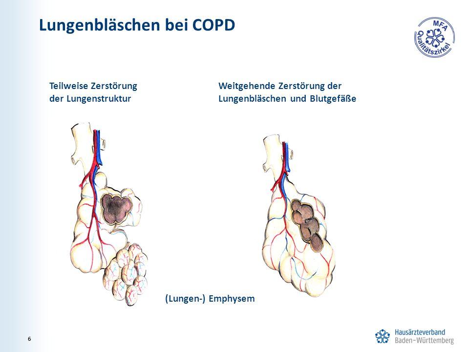 Lungenbläschen bei COPD