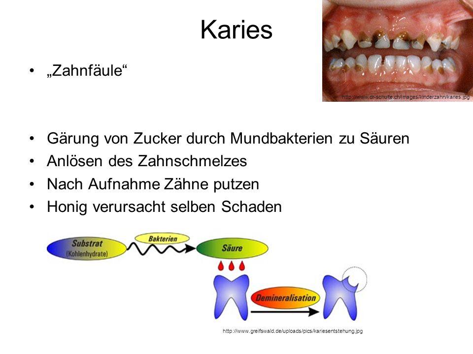 """Karies """"Zahnfäule Gärung von Zucker durch Mundbakterien zu Säuren"""