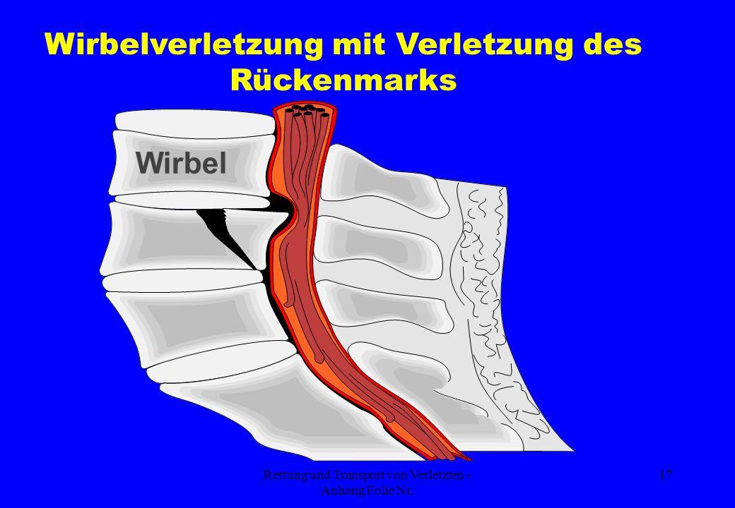 Wirbelverletzung mit Verletzung des Rückenmarks