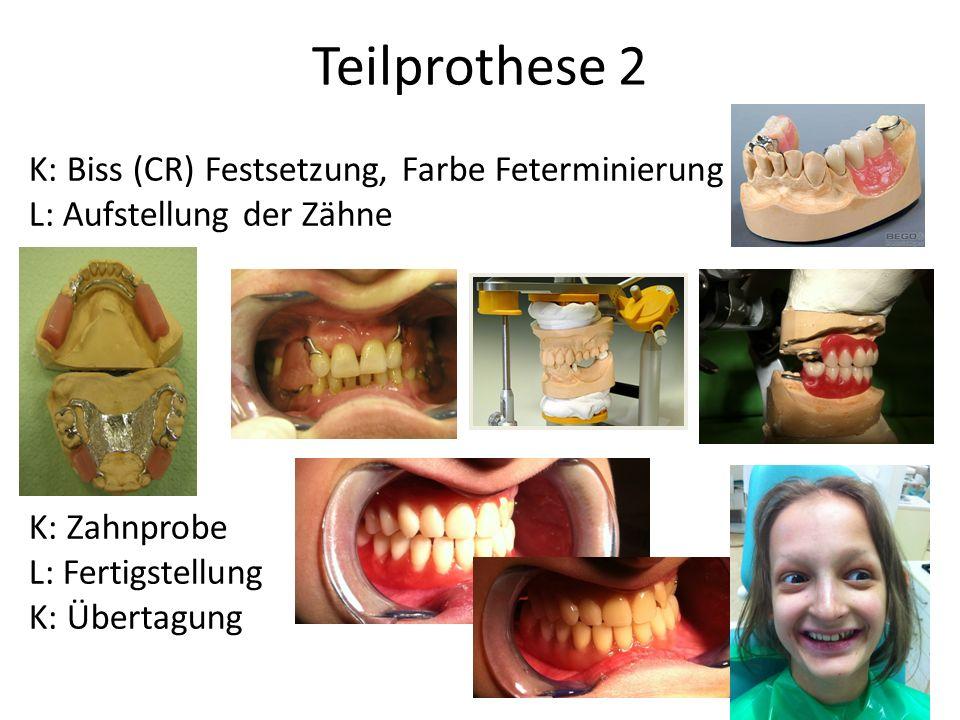 Teilprothese 2 K: Biss (CR) Festsetzung, Farbe Feterminierung