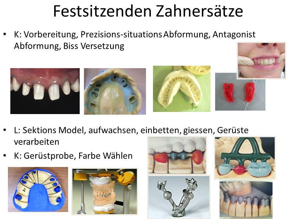 Festsitzenden Zahnersätze