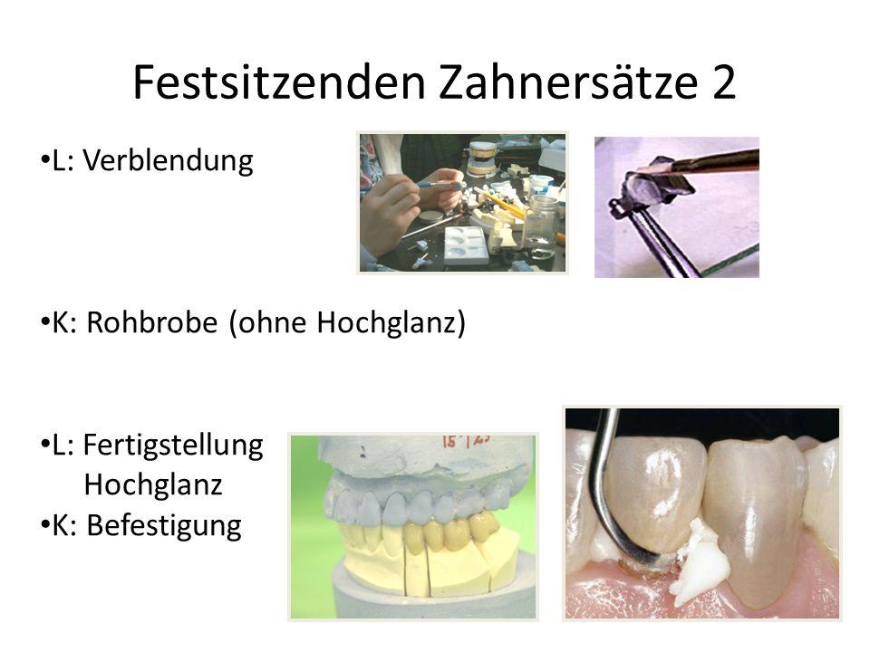 Festsitzenden Zahnersätze 2