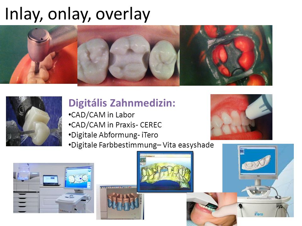 Inlay, onlay, overlay Digitális Zahnmedizin: CAD/CAM in Labor