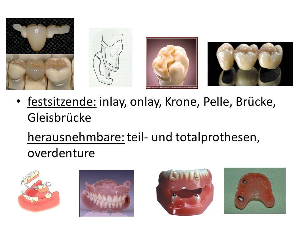 festsitzende: inlay, onlay, Krone, Pelle, Brücke, Gleisbrücke