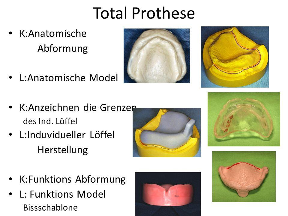 Total Prothese K:Anatomische Abformung L:Anatomische Model