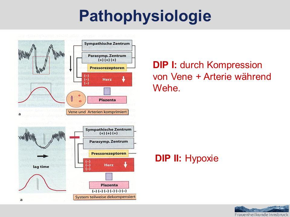 Pathophysiologie DIP I: durch Kompression von Vene + Arterie während Wehe. DIP II: Hypoxie
