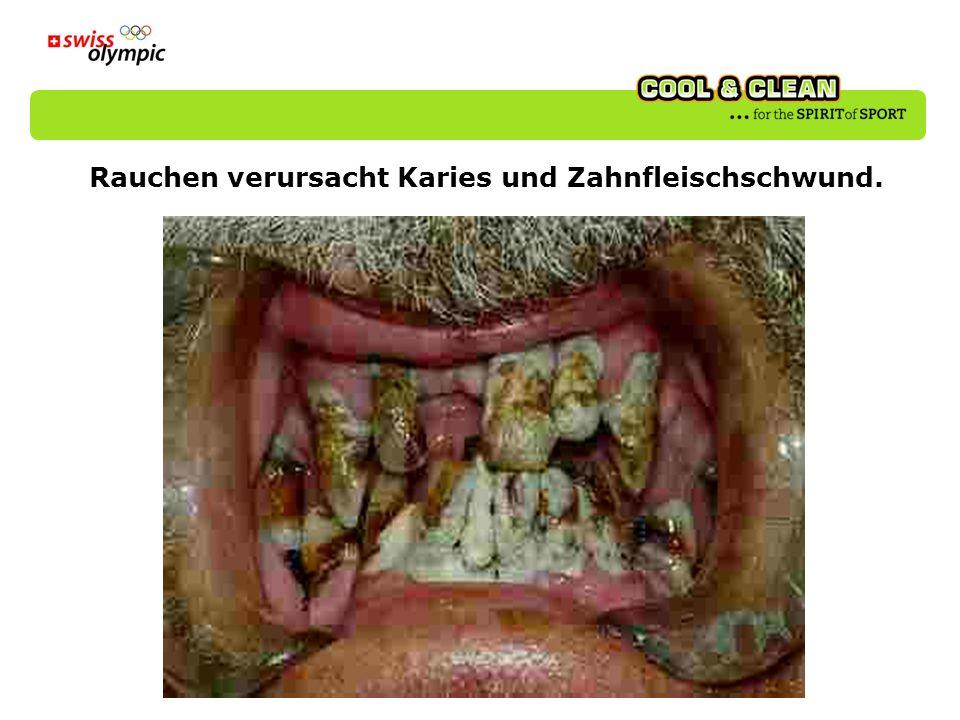 Rauchen verursacht Karies und Zahnfleischschwund.