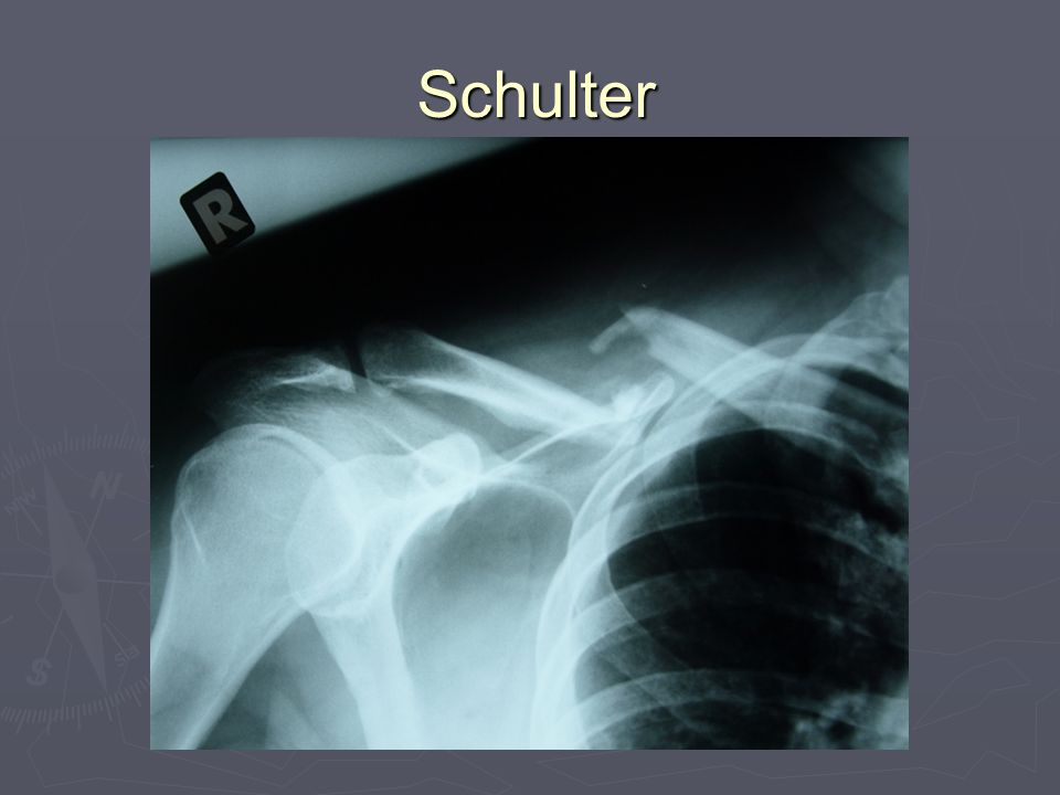 Schulter 17