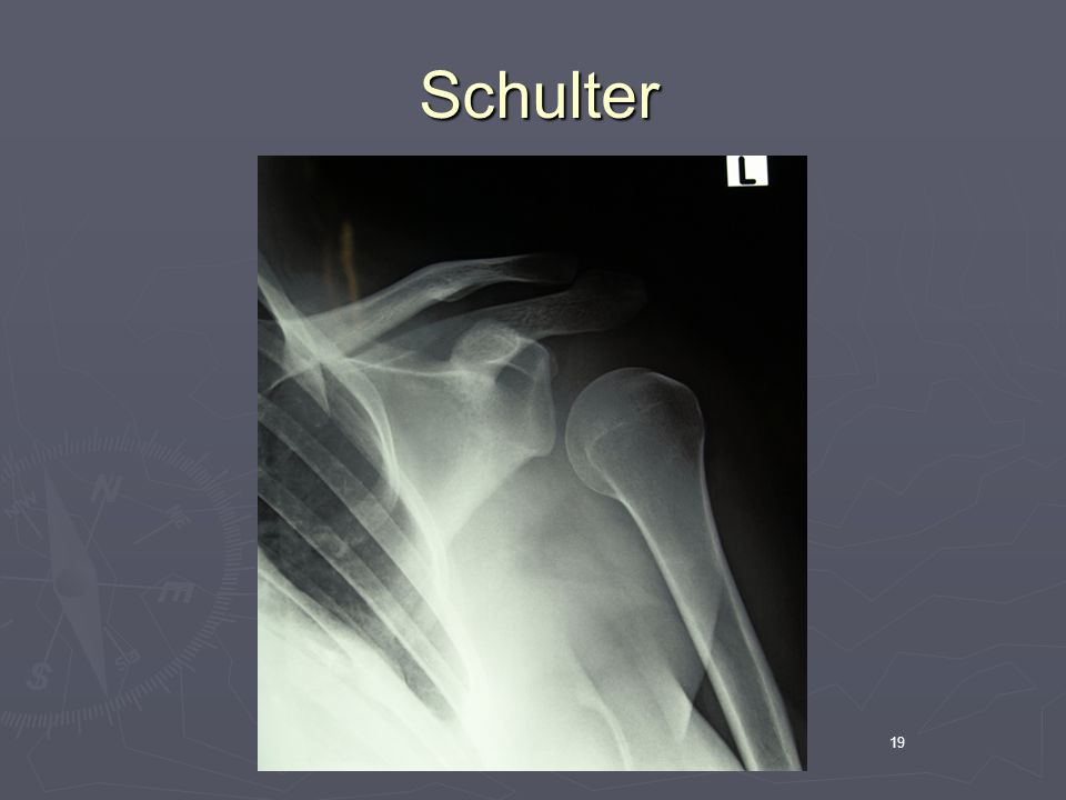 Schulter 19