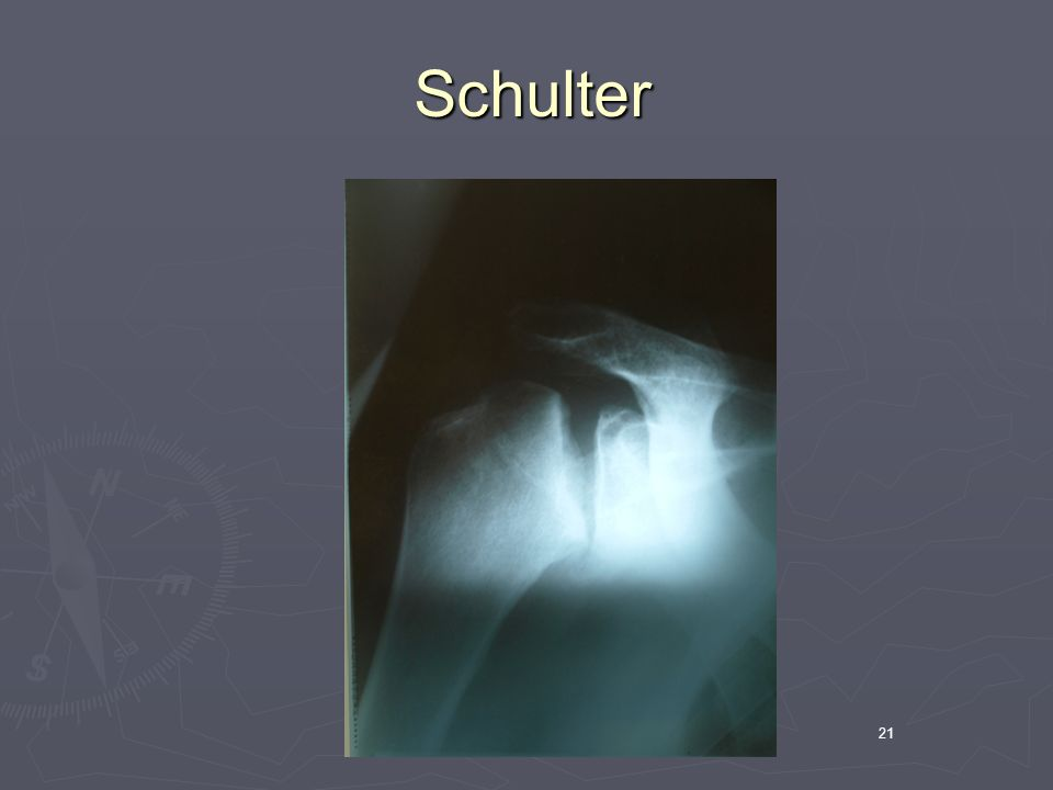 Schulter 21
