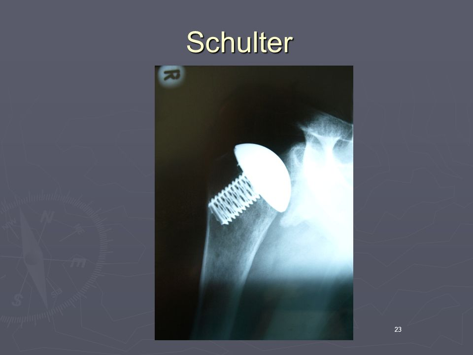 Schulter 23
