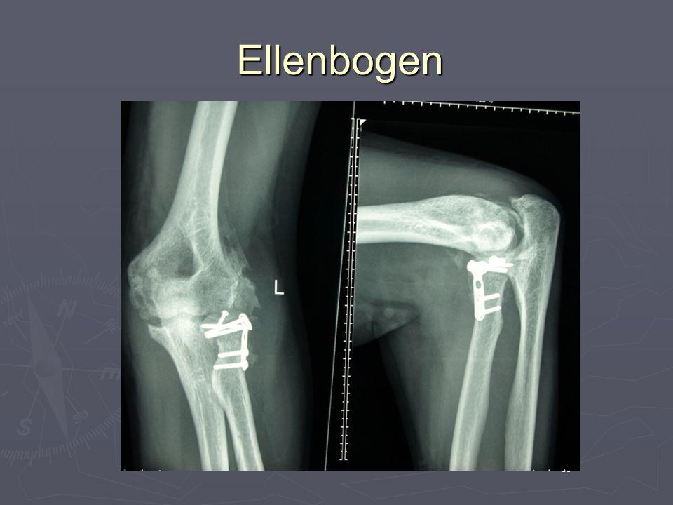 Ellenbogen 35