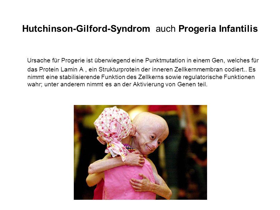 Hutchinson-Gilford-Syndrom auch Progeria Infantilis