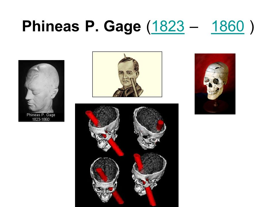 Phineas P. Gage (1823 – 1860 )