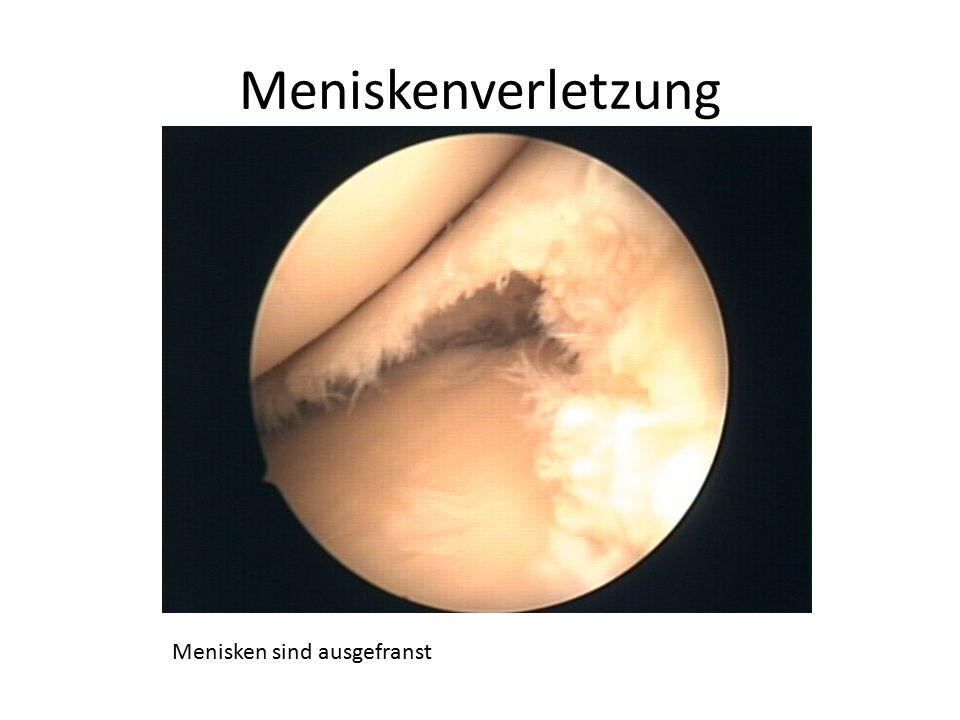 Meniskenverletzung Menisken sind ausgefranst