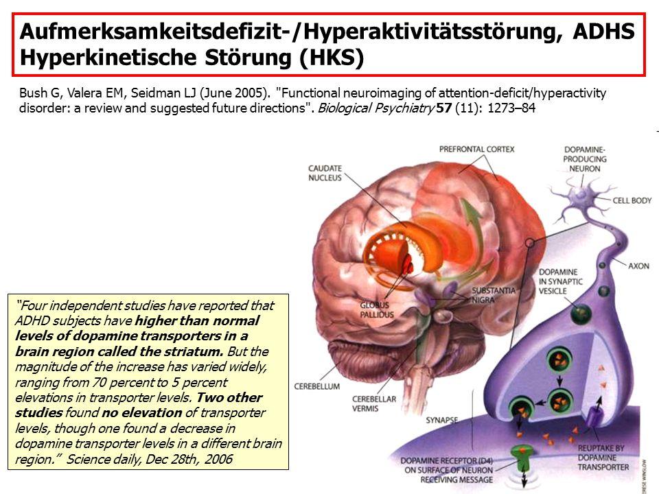 Aufmerksamkeitsdefizit-/Hyperaktivitätsstörung, ADHS