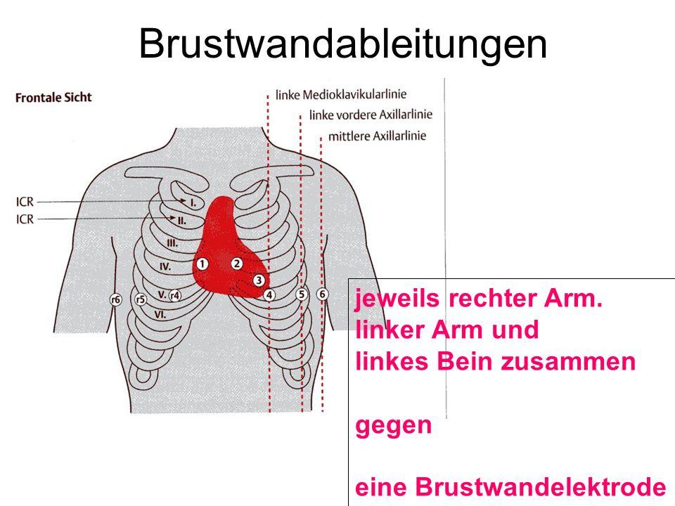 Brustwandableitungen