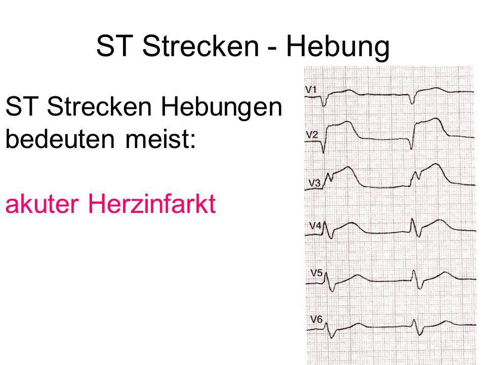 ST Strecken - Hebung ST Strecken Hebungen bedeuten meist:
