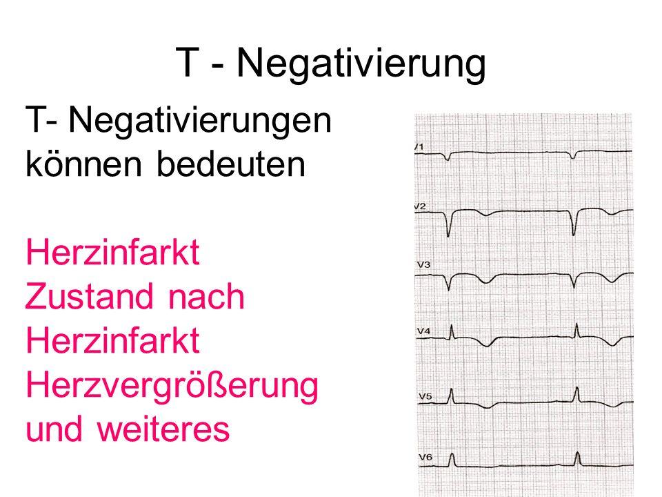 T - Negativierung T- Negativierungen können bedeuten Herzinfarkt