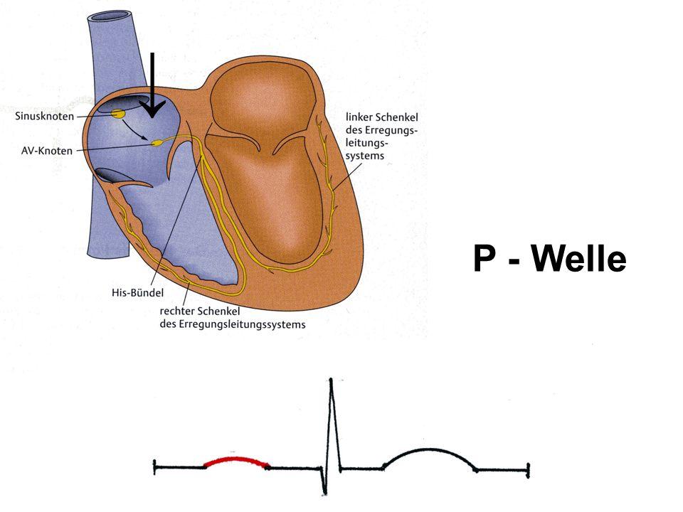 ↓ P - Welle