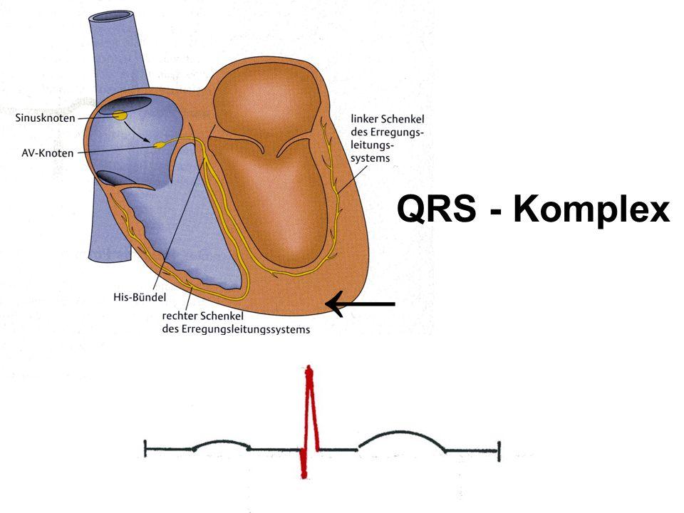 QRS - Komplex ←