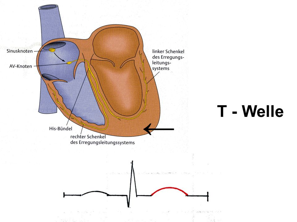 T - Welle ←