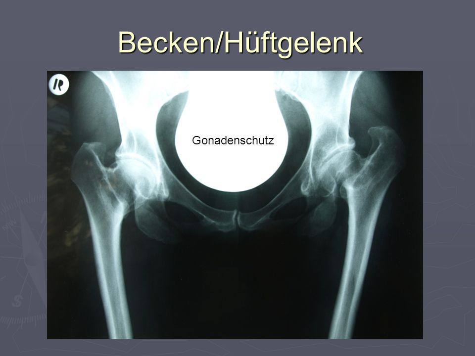 Becken/Hüftgelenk Gonadenschutz 12